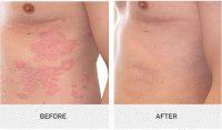 Φάρμακο για την ψωρίαση, της Novartis, επιτυγχάνει υψηλά επίπεδα κάθαρσης του δέρματος που διαρκεί