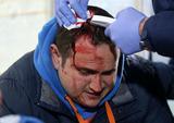 Επεισόδια στο Καυτανζόγλειο – Τραυματίστηκε δημοσιογράφος [vds+photo]