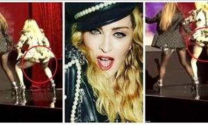 Έκανε πλαστική στα οπίσθια η Μαντόνα! Το… twerking πρόδωσε το μυστικό της- ΦΩΤΟ