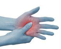 Αλγοδυστροφία ή σύνδρομο σύμπλοκου περιοχικού πόνου με πόνο και αίσθημα καψίματος σε πόδια ή χέρια