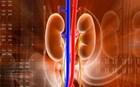 Τακτικό νεφρολογικό ιατρείο στη Νάξο