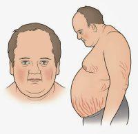 Αύξηση βάρους, διαβήτης, υπέρταση και εύκολη κόπωση μπορεί να συνδέονται με νόσο, σύνδρομο Cushing