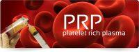 PRP: Μία αποτελεσματική μέθοδος στην αντιμετώπιση των ορθοπαιδικών παθήσεων
