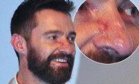 Βασικοκυτταρικό Καρκίνωμα, αναγνωρίστε και αντιμετωπίστε την πιο συνηθισμένη μορφή καρκίνου του δέρματος (φωτο)