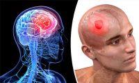 Ζάλη, πονοκέφαλος, ναυτία, αστάθεια, σπασμοί μπορεί να οφείλονται σε όγκο – καρκίνο στον εγκέφαλο. Παράγοντες κινδύνου