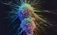 Το κάπνισμα κύρια αιτία του καρκίνου της ουροδόχου κύστης
