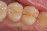 Kάταγμα δοντιού. Πονάτε στο δάγκωμα; Μήπως έχει σπάσει δόντι;