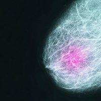 Ακόμη και οι μικροί όγκοι του μαστού μπορεί να είναι επιθετικοί