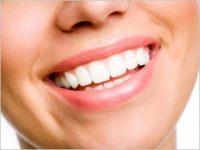 Λευκάνσεις δοντιών και σε κομμωτήρια