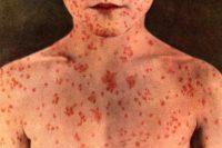 Τι είναι η ιλαρά; Ποια τα συμπτώματα, ποιοι θεωρούνται ασφαλείς και ποιοι πρέπει να εμβολιαστούν;