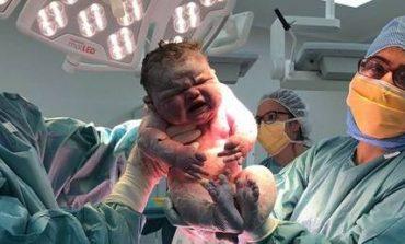 Το μωρό που γεννήθηκε 6 κιλά και έτρεχαν να δουν όλες οι νοσοκόμες (Pic)
