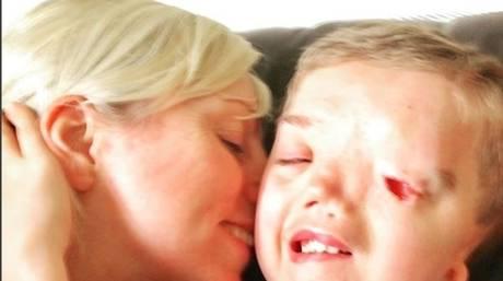 Το Instagram κατέβασε φωτογραφία αγοριού χωρίς μάτι, για διάκριση κάνει λόγο η μητέρα