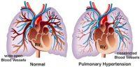 Ελπίδες για νέο φάρμακο κατά της πνευμονικής αρτηριακής υπέρτασης