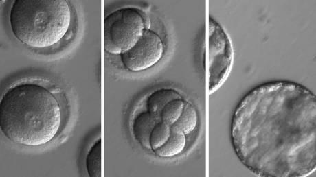 Επιστήμονες ανέπτυξαν πιο ασφαλές προγεννητικό τεστ DNA για το σύνδρομο Down