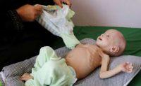 Λιμοκτονούν χιλιάδες παιδιά στην Υεμένη