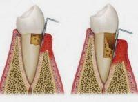 Οι ρίζες των δοντιών πότε και πώς προσβάλλονται από τερηδόνα;