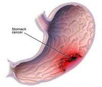 Καρκίνος του στομάχου. Ποια τα συμπτώματα και ποια τα μέτρα πρόληψης; Ποιες τροφές βοηθούν και τι προσέχουμε;