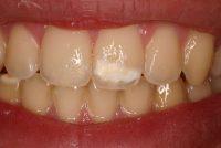 Κηλίδες καφέ, λευκές, υποκίτρινες στα δόντια (Υπενασβεστίωση – Υποπλασία της αδαμαντίνης)