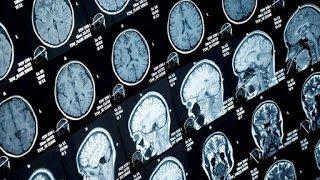 Νέες ελπίδες για την πολλαπλή σκλήρυνση χάρη στη μεταμόσχευση βλαστοκυττάρων