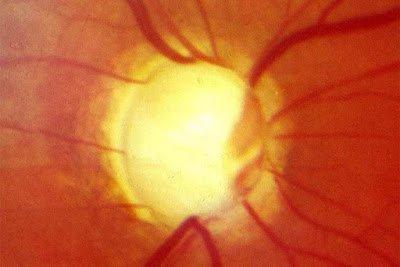 Παγκόσμια Εβδομάδα Γλαυκώματος. Πώς θα καταλάβετε ότι μπορεί να έχετε γλαύκωμα και πώς θα προλάβετε την τύφλωση (video)