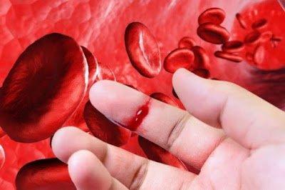 Αιμορροφιλία, τι είναι, τι προκαλεί και πώς αντιμετωπίζεται; Πρώτες βοήθειες αιμορραγικού επεισοδίου