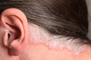 Σημαντική βελτίωση με κάθαρση του δέρματος σε Ψωρίαση στο τριχωτό της κεφαλής, με φάρμακο της Novartis
