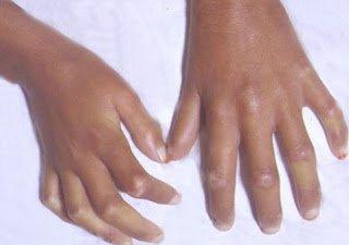 Συστηματικό σκληρόδερμα. Μια σπάνια ρευματολογική νόσος με σοβαρές καρδιολογικές συνέπειες (20 Απριλίου Ωνάσειο)