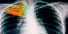 Ψήφισμα της Κ.Σ. του Συμβουλίου της Ευρώπης για την ανάγκη αντιμετώπισης της φυματίωσης
