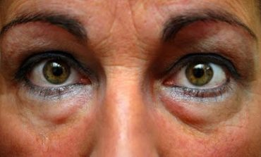 Σακούλες, μαύροι κύκλοι στα μάτια. Ποιες οι αιτίες; Φυσικά μέσα και σπιτικές μάσκες ματιών για αντιμετώπισή τους