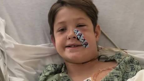Σοκαριστικό ατύχημα για 10χρονο: Σούβλα διαπέρασε το κρανίο του  (vid)