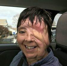 Έχασε το μάτι της και παραμορφώθηκε από φωτοβολίδα