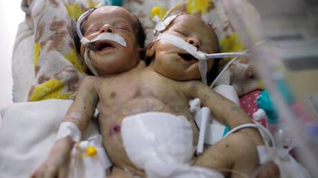 Σιαμαία βρέφη δεν μπορούν να διαχωριστούν λόγω πολέμου και έλλειψης εξοπλισμού  στην Υεμένη (pics&vid)