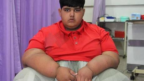 Το πιο παχύσαρκο παιδί του κόσμου προετοιμάζεται για την επέμβαση που θα του σώσει τη ζωή (pics&vid)