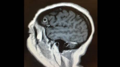 Νόμιζε πως είχε καρκίνο στον εγκέφαλο – Αντί για όγκο βρήκαν κάτι ανατριχιαστικό στον εγκέφαλό της