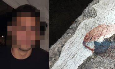Εξιτήριο πήρε ο 19χρονος που μαχαιρώθηκε στην Καλλιθέα