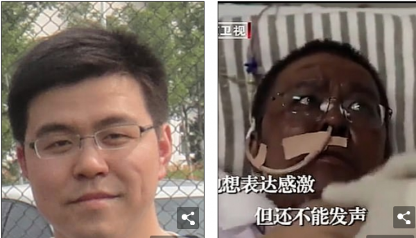 Δυο γιατροί στην Ουχάν ξύπνησαν από κώμα έχοντας σκούρο δέρμα – Ο κοροναϊός έβλαψε το συκώτι τους