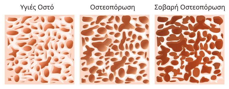 Η διατροφή στην πρόληψη της οστεοπόρωσης