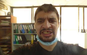 """Μαφιόζικη επίθεση! Σακάτεψαν τον δημοσιογράφο Μιχάλη Τσοκάνη 2 """"φουσκωτοί"""". Ιδιοκτήτη νυχτερινού κέντρου """"φωτογράφησε"""" ως ηθικό αυτουργό στην μήνυση του."""