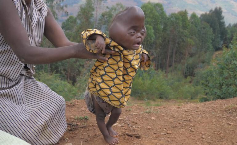 Αγοράκι γεννήθηκε με σπάνια ασθένεια και ο πατέρας του το εγκατέλειψε